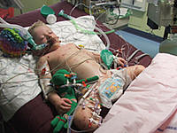 Joe Way in PICU Bristol Childrens Hospital